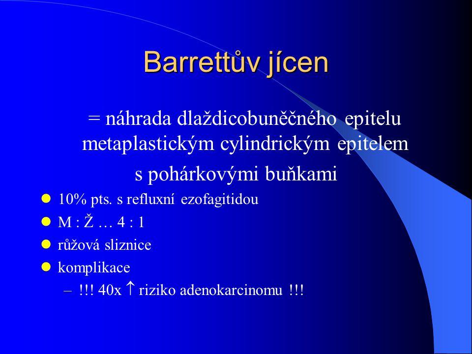 Barrettův jícen = náhrada dlaždicobuněčného epitelu metaplastickým cylindrickým epitelem. s pohárkovými buňkami.