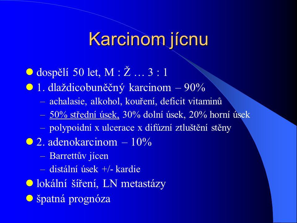 Karcinom jícnu dospělí 50 let, M : Ž … 3 : 1