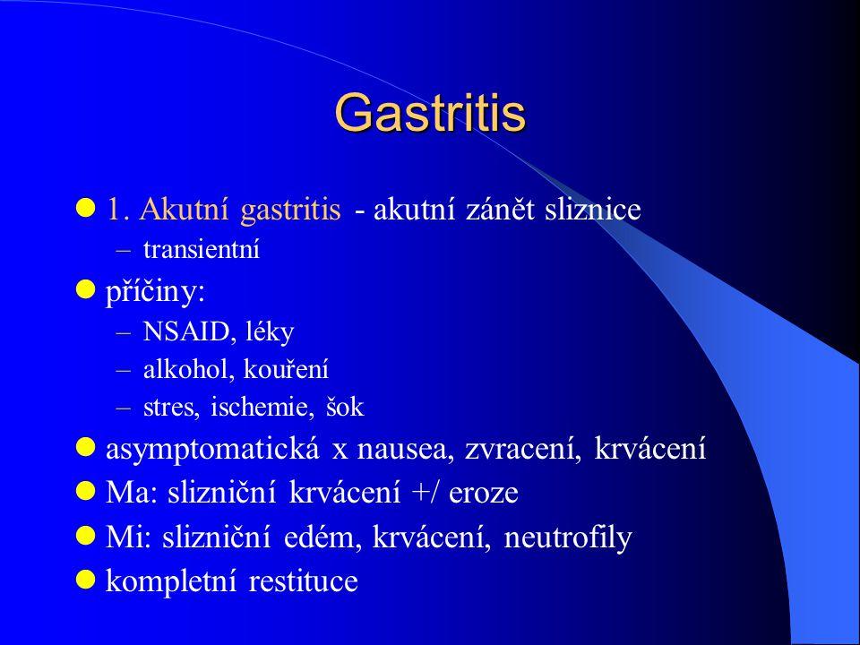 Gastritis 1. Akutní gastritis - akutní zánět sliznice příčiny: