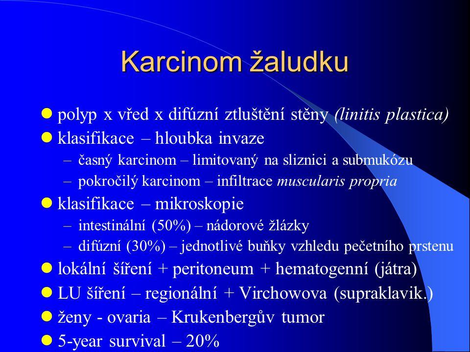 Karcinom žaludku polyp x vřed x difúzní ztluštění stěny (linitis plastica) klasifikace – hloubka invaze.
