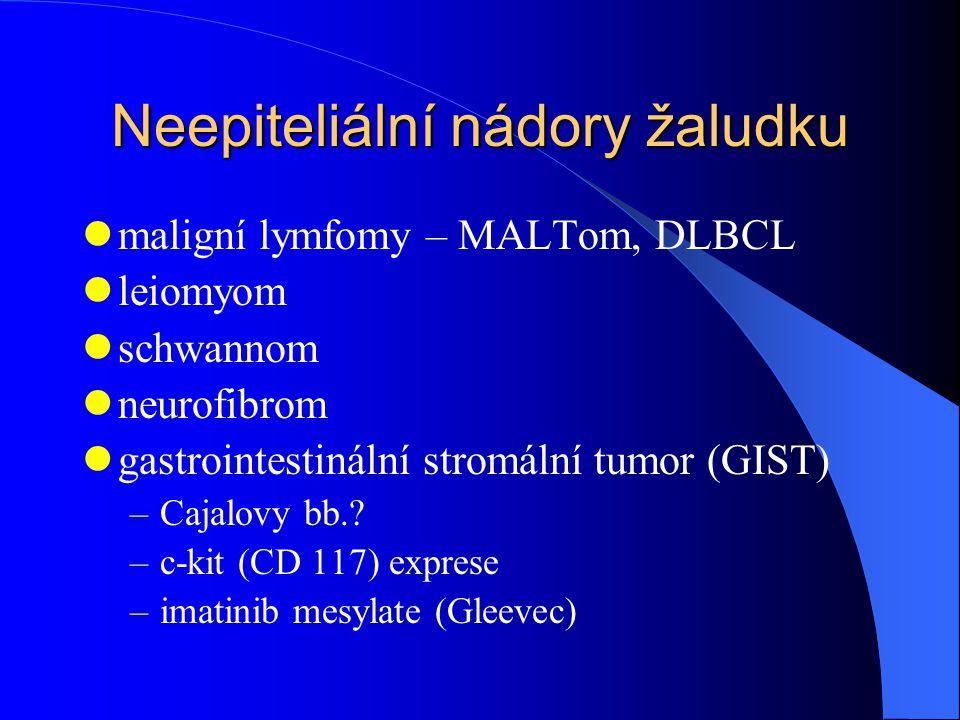 Neepiteliální nádory žaludku