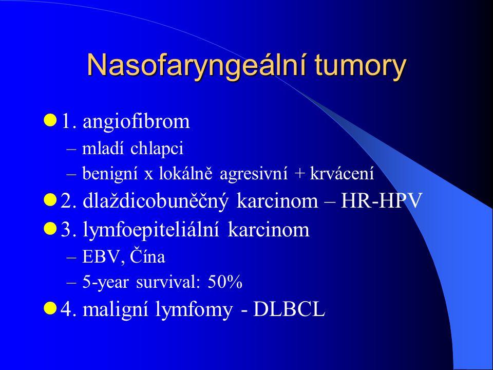 Nasofaryngeální tumory