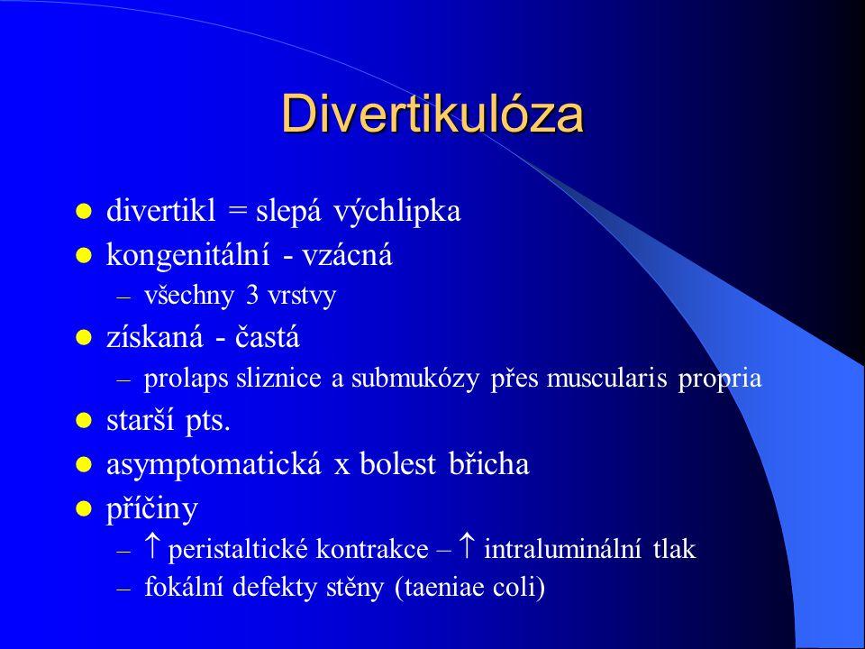 Divertikulóza divertikl = slepá výchlipka kongenitální - vzácná