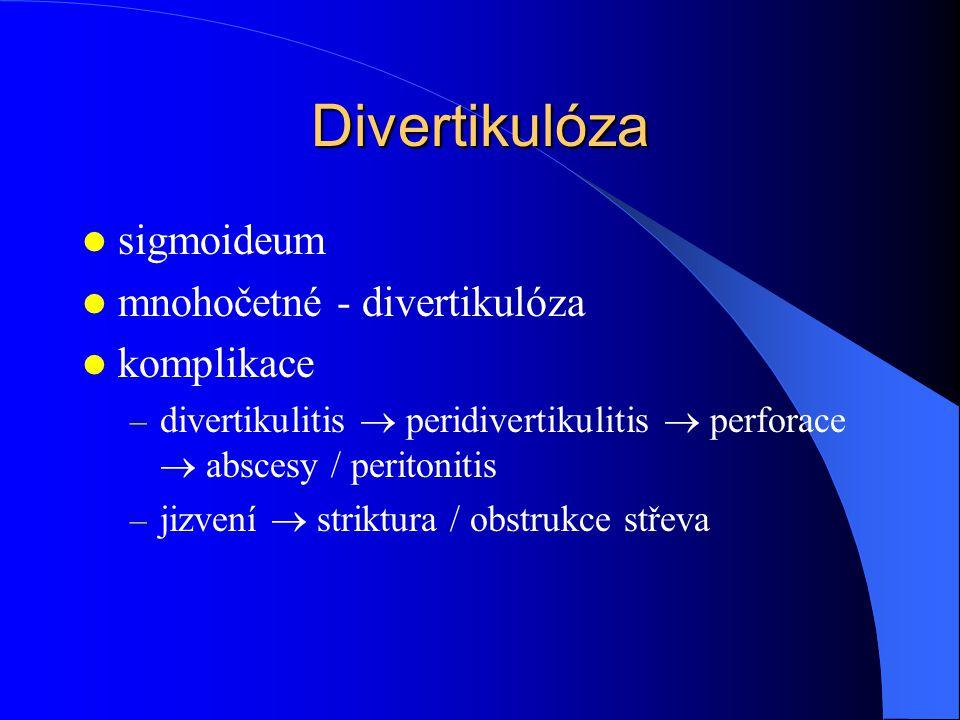 Divertikulóza sigmoideum mnohočetné - divertikulóza komplikace