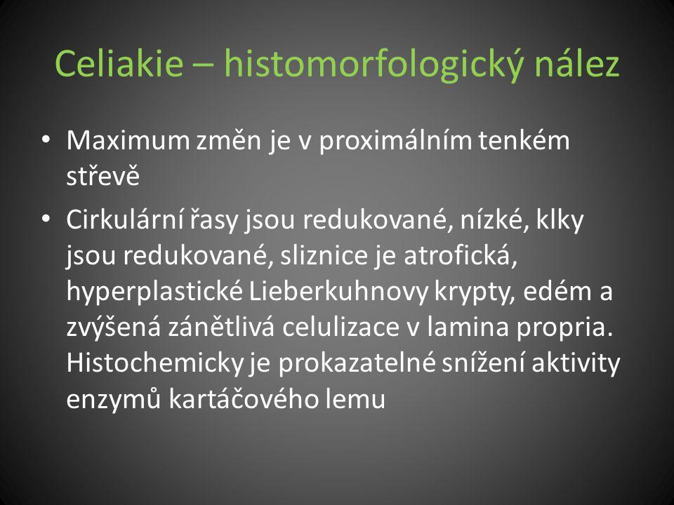 Celiakie – histomorfologický nález