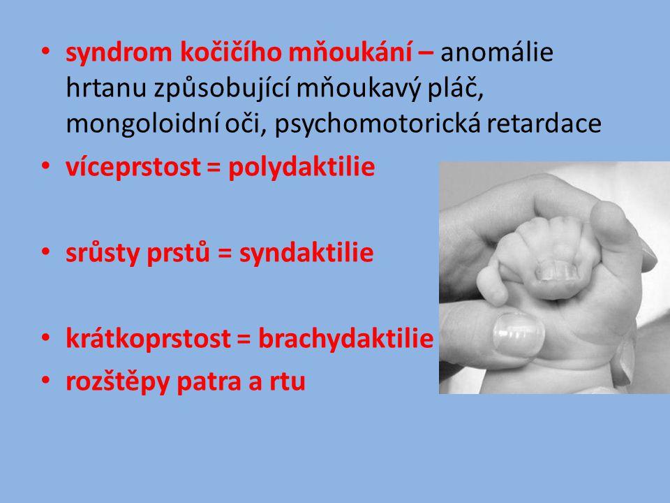 syndrom kočičího mňoukání – anomálie hrtanu způsobující mňoukavý pláč, mongoloidní oči, psychomotorická retardace