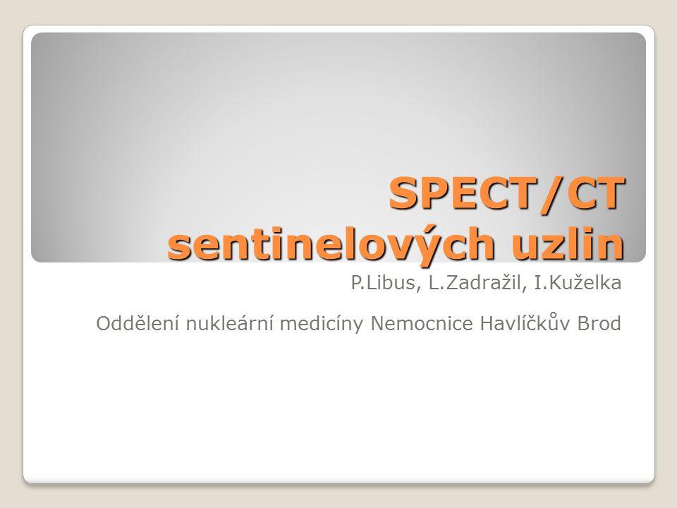 SPECT/CT sentinelových uzlin