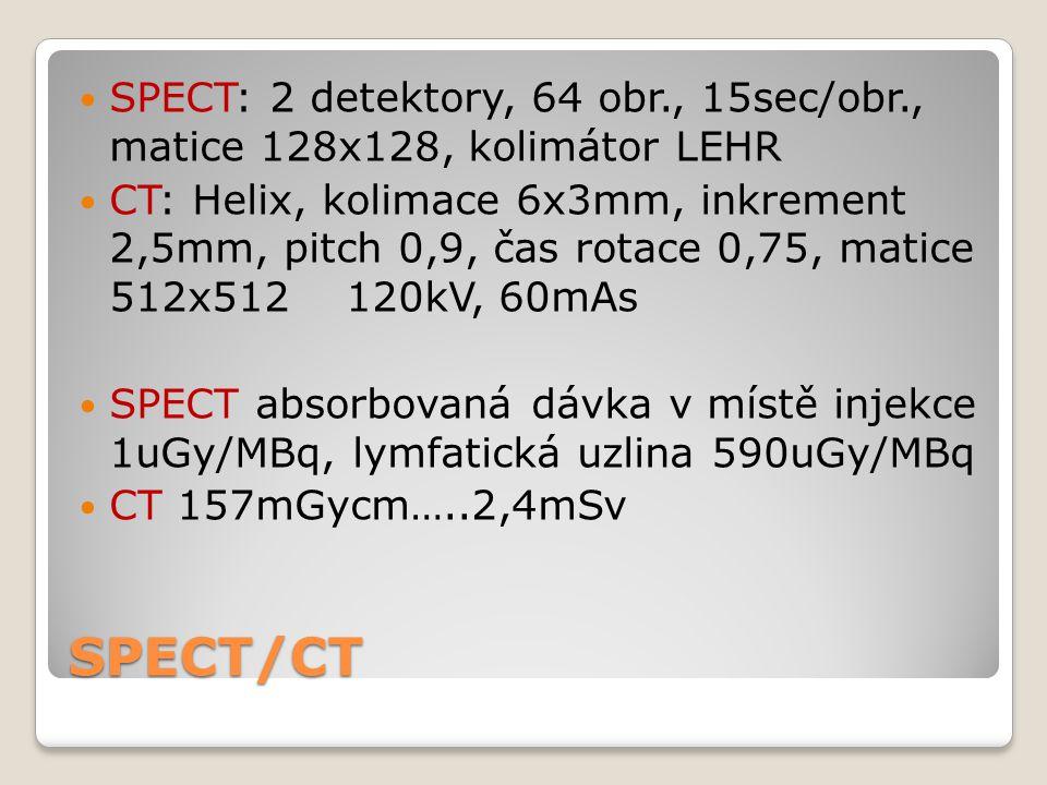 SPECT: 2 detektory, 64 obr. , 15sec/obr