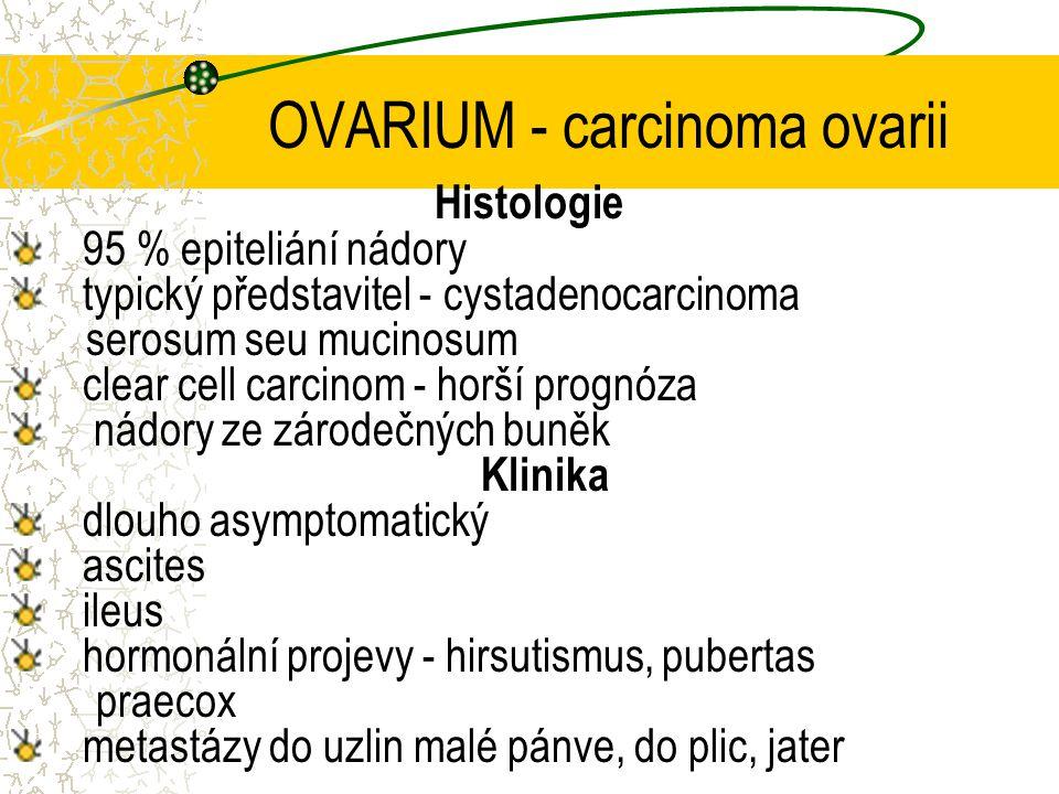 OVARIUM - carcinoma ovarii