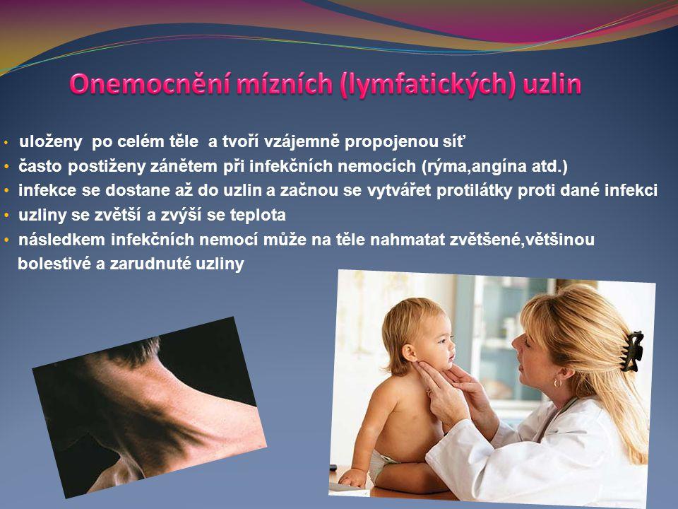 Onemocnění mízních (lymfatických) uzlin