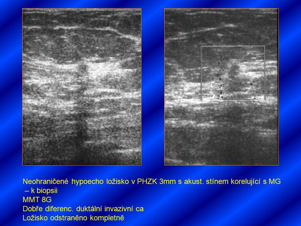 Neohraničené hypoecho ložisko v PHZK 3mm s akust