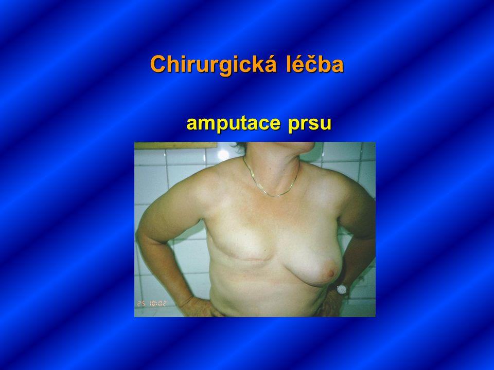 Chirurgická léčba amputace prsu