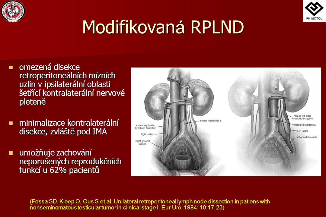 Modifikovaná RPLND omezená disekce retroperitoneálních mízních uzlin v ipsilaterální oblasti šetřící kontralaterální nervové pleteně.
