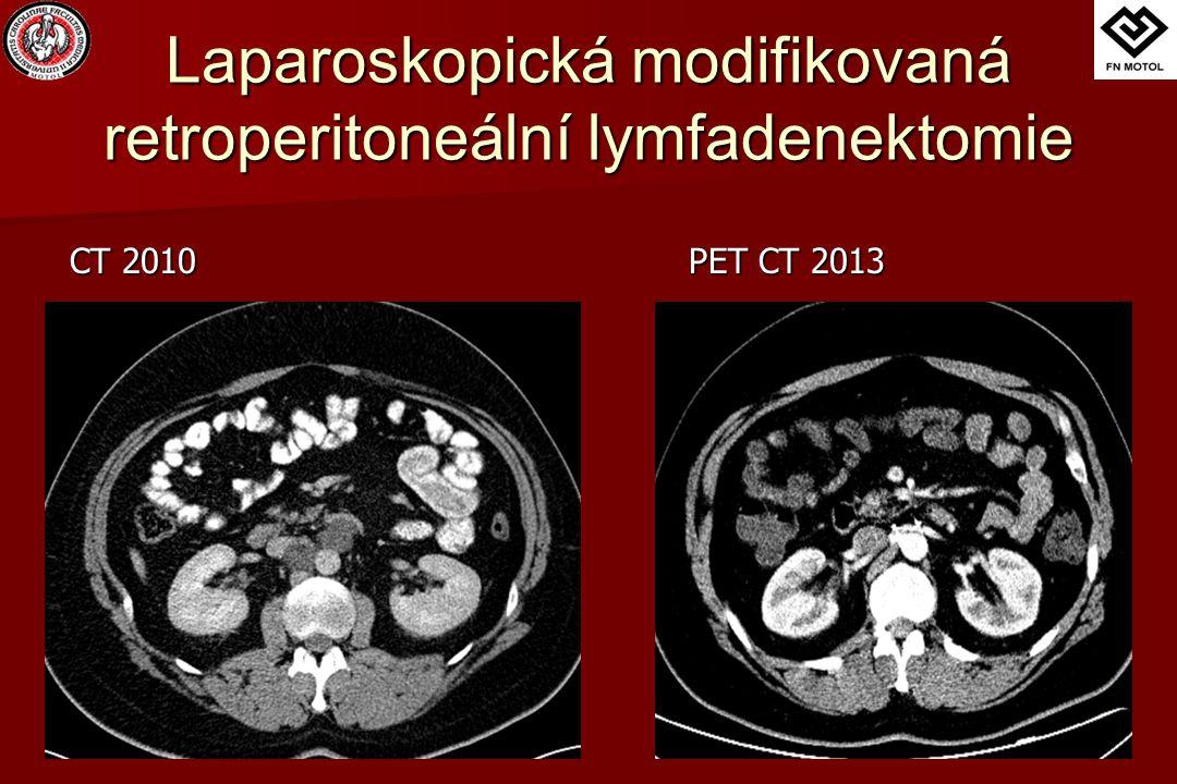 Laparoskopická modifikovaná retroperitoneální lymfadenektomie