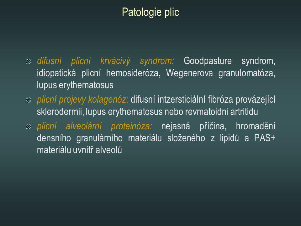 Patologie plic difusní plicní krvácivý syndrom: Goodpasture syndrom, idiopatická plicní hemosideróza, Wegenerova granulomatóza, lupus erythematosus.