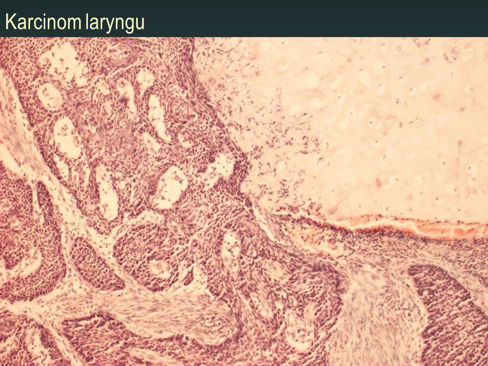 Karcinom laryngu