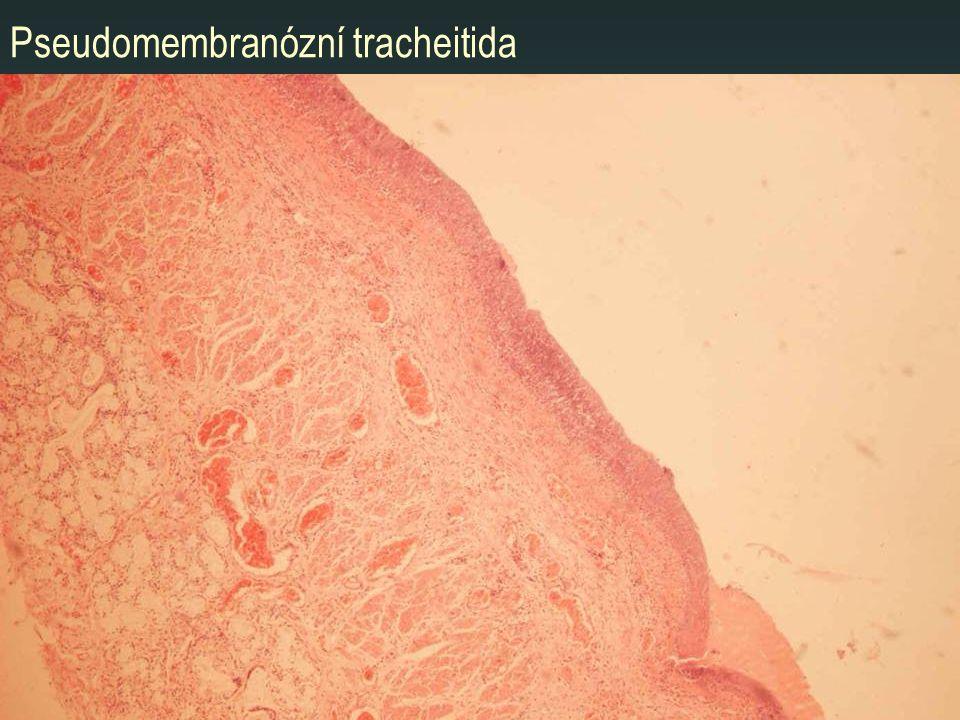 Pseudomembranózní tracheitida