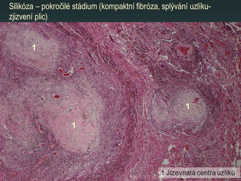 Silikóza – pokročilé stádium (kompaktní fibróza, splývání uzlíku-zjizvení plic)