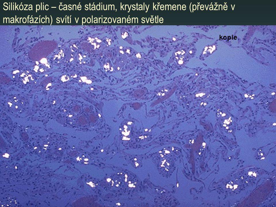 Silikóza plic – časné stádium, krystaly křemene (převážně v makrofázích) svítí v polarizovaném světle