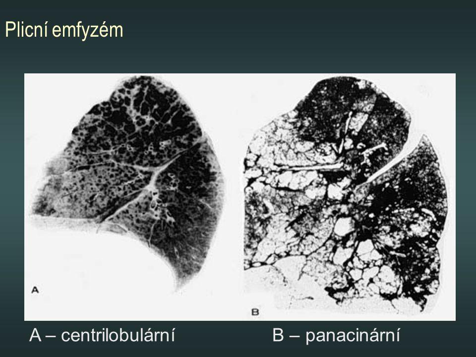 Plicní emfyzém A – centrilobulární B – panacinární