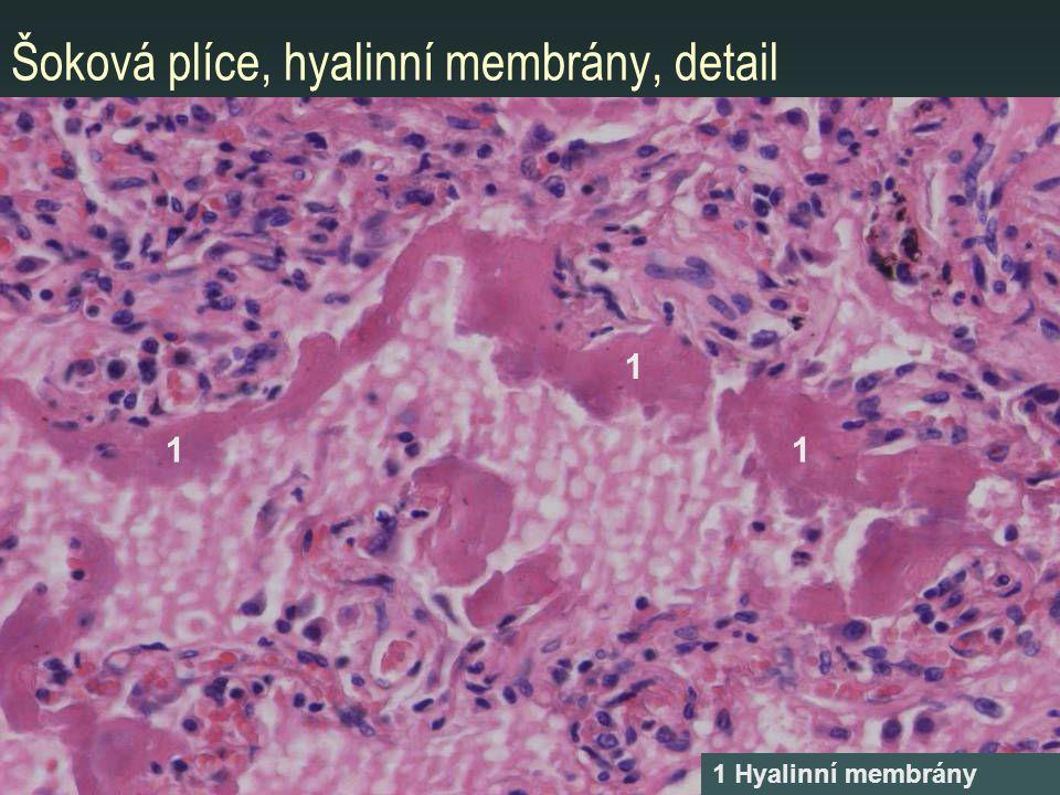 Šoková plíce, hyalinní membrány, detail