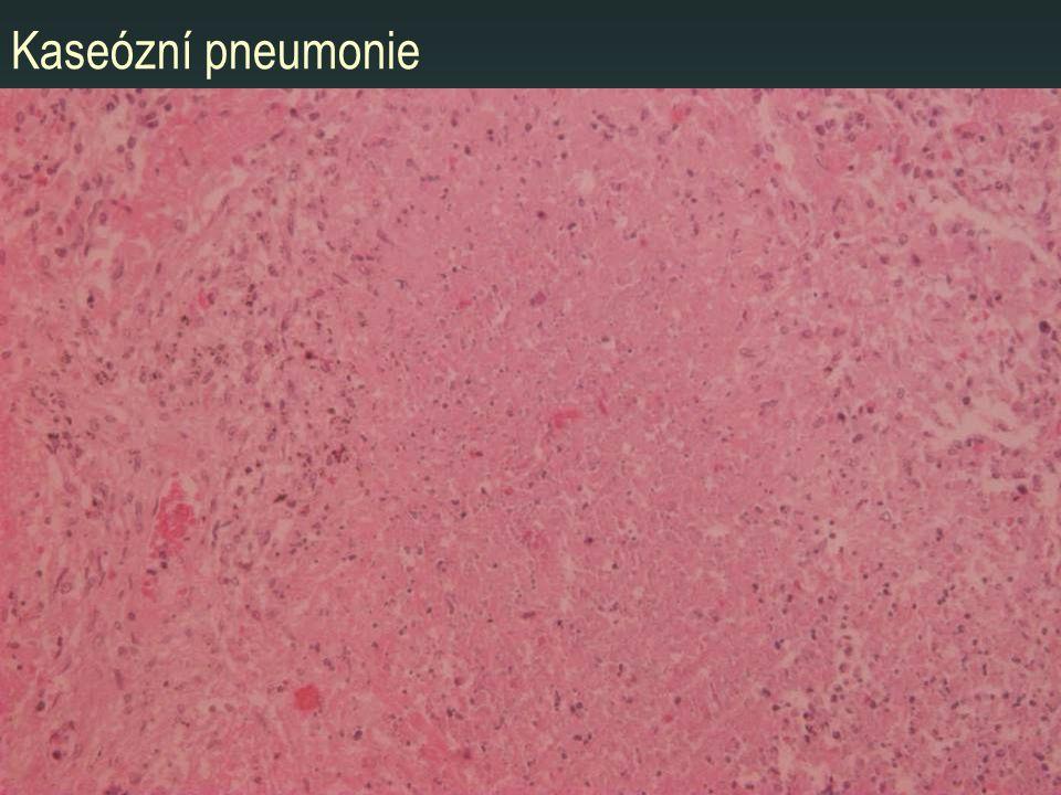 Kaseózní pneumonie