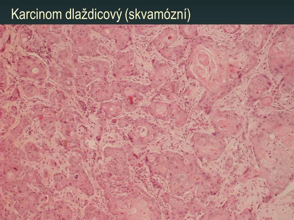 Karcinom dlaždicový (skvamózní)