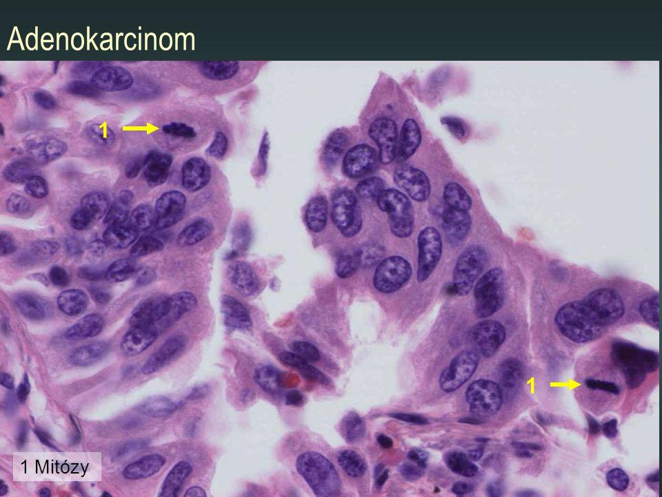 Adenokarcinom 1 1 1 Mitózy