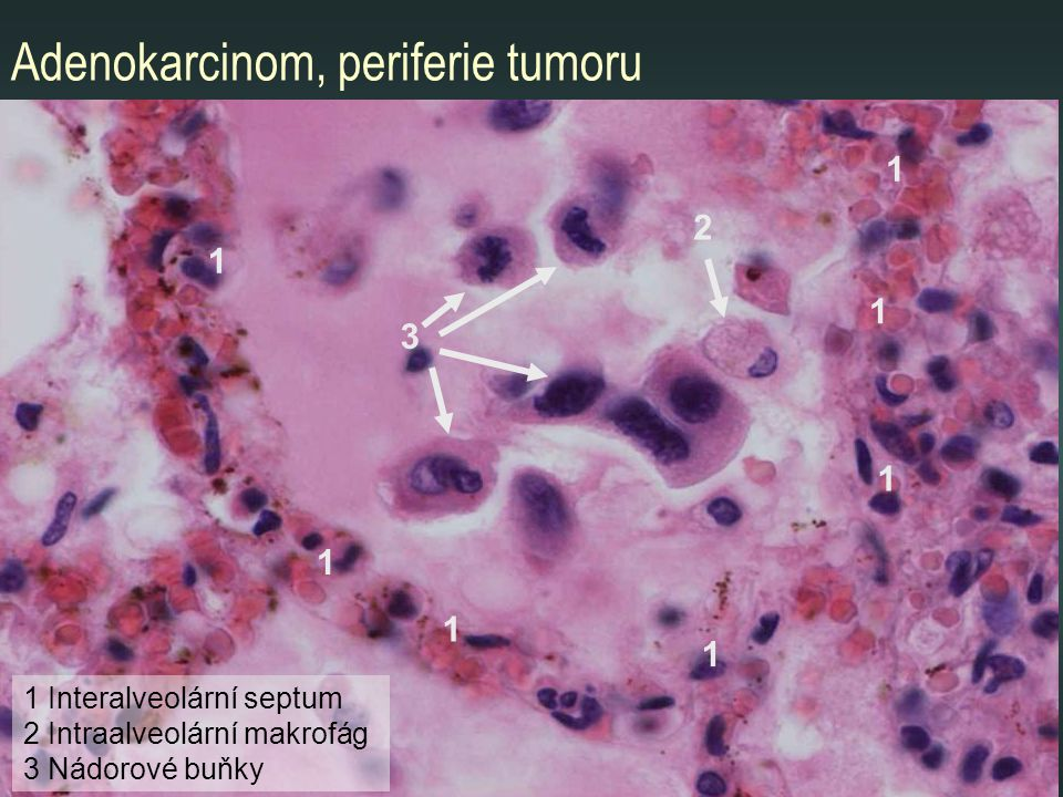Adenokarcinom, periferie tumoru