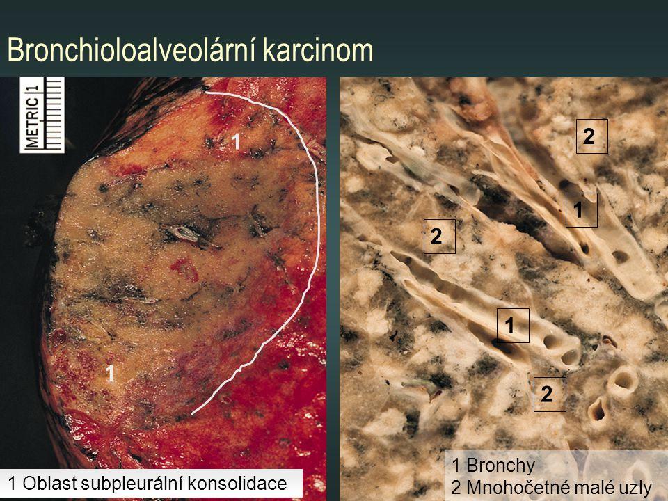 Bronchioloalveolární karcinom