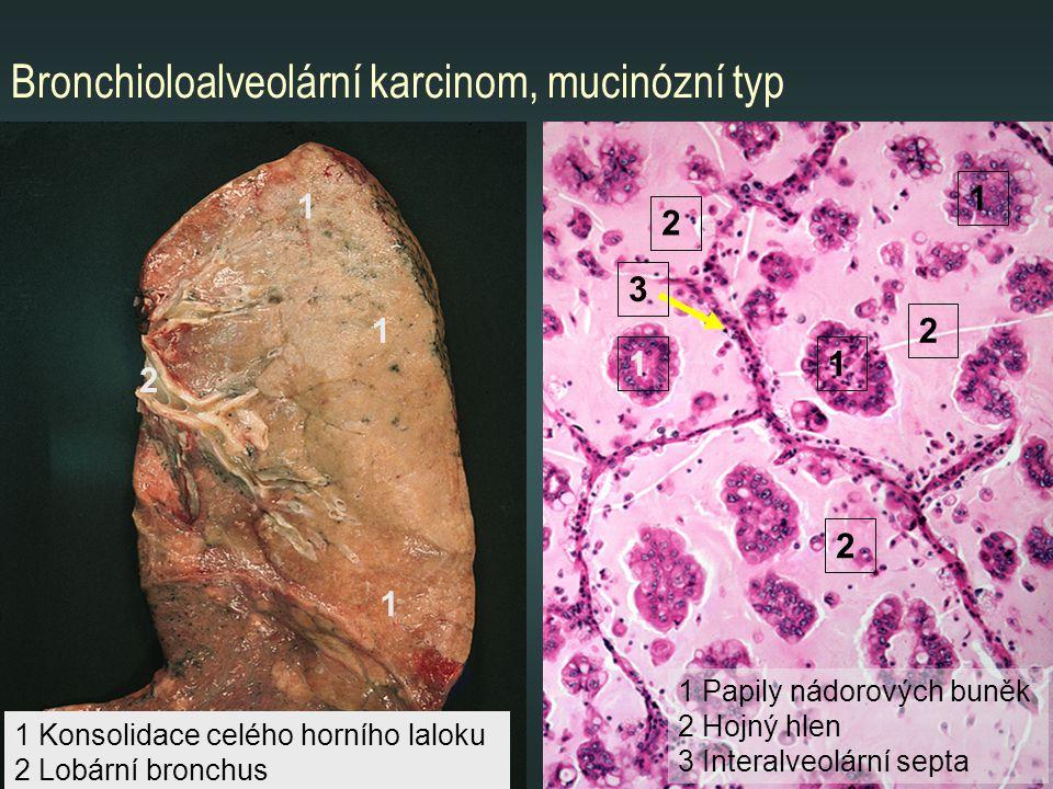 Bronchioloalveolární karcinom, mucinózní typ