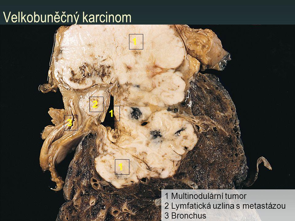 Velkobuněčný karcinom