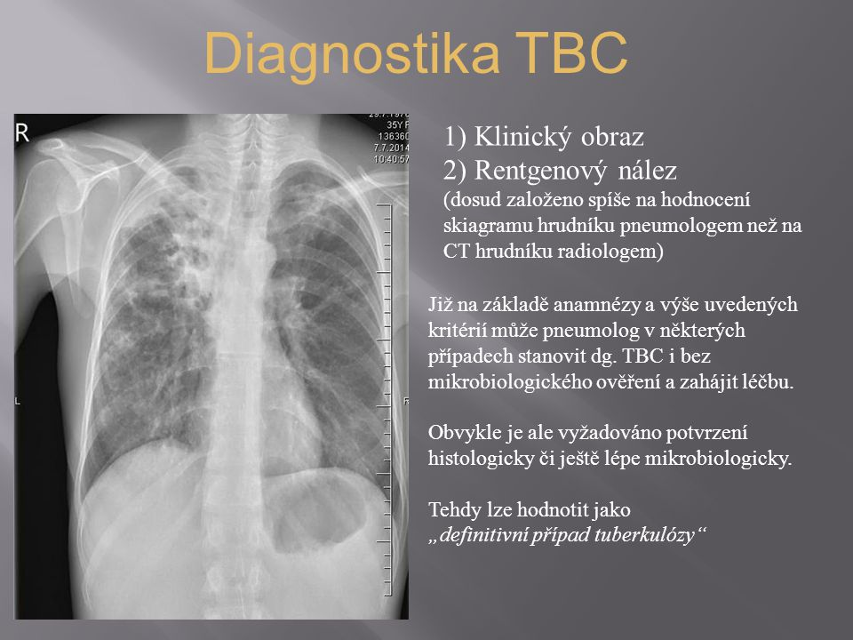 Diagnostika TBC Klinický obraz Rentgenový nález