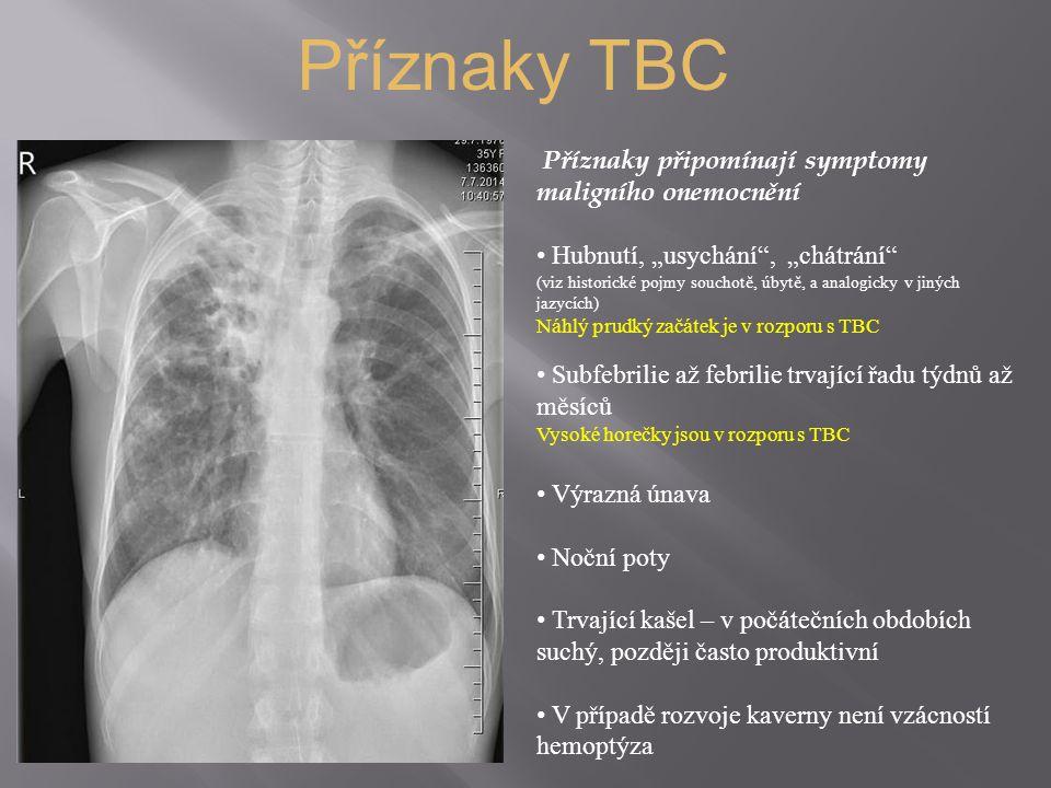 Příznaky TBC Příznaky připomínají symptomy maligního onemocnění
