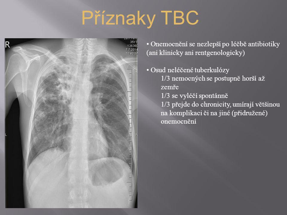 Příznaky TBC Onemocnění se nezlepší po léčbě antibiotiky