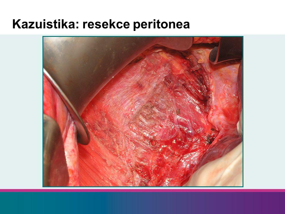 Kazuistika: resekce peritonea