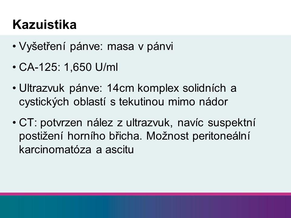 Kazuistika Vyšetření pánve: masa v pánvi CA-125: 1,650 U/ml