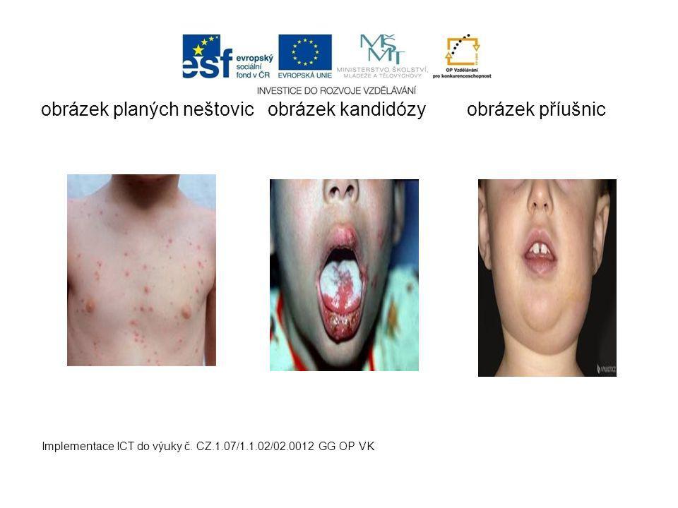 obrázek planých neštovic obrázek kandidózy obrázek příušnic