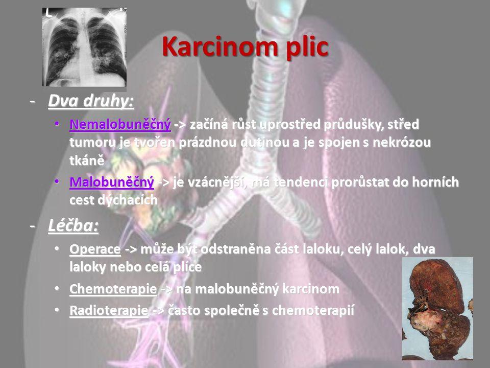 Karcinom plic Dva druhy: Léčba: