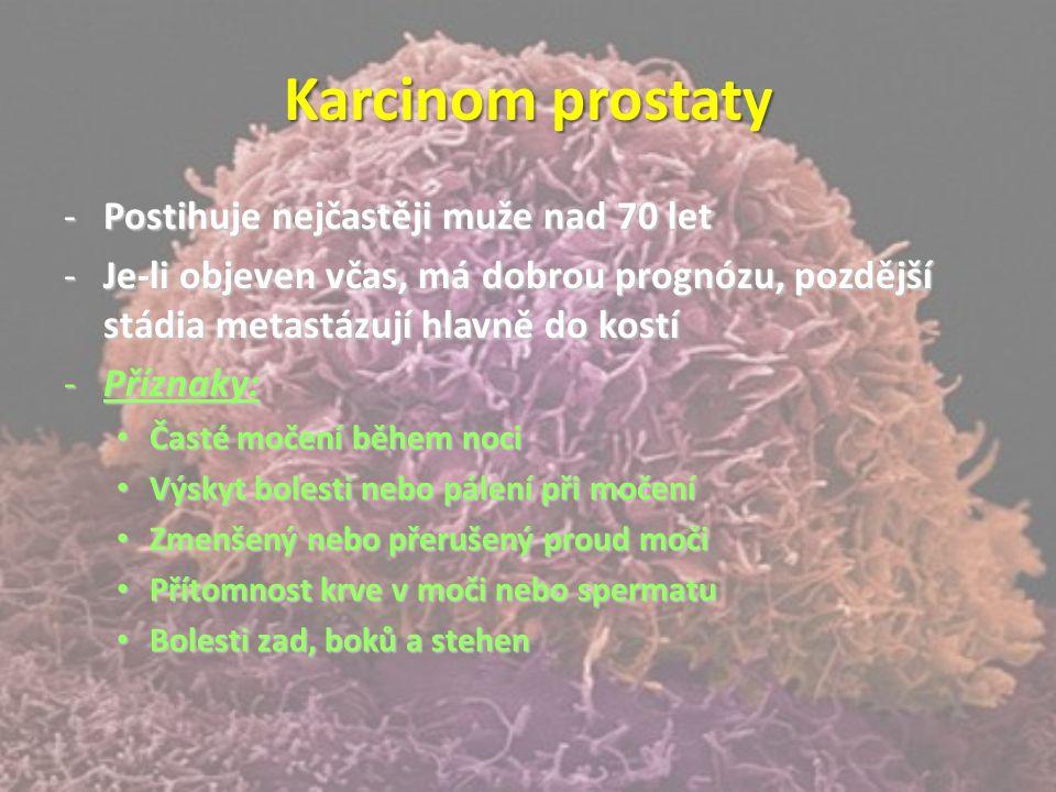 Karcinom prostaty Postihuje nejčastěji muže nad 70 let