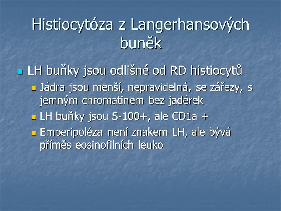 Histiocytóza z Langerhansových buněk