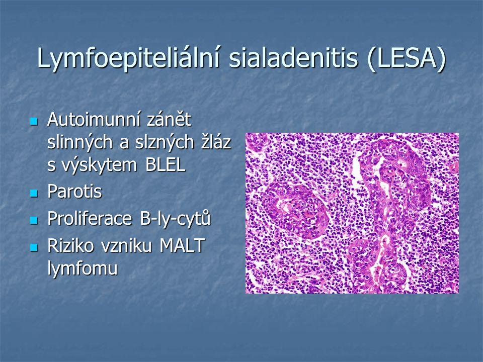 Lymfoepiteliální sialadenitis (LESA)