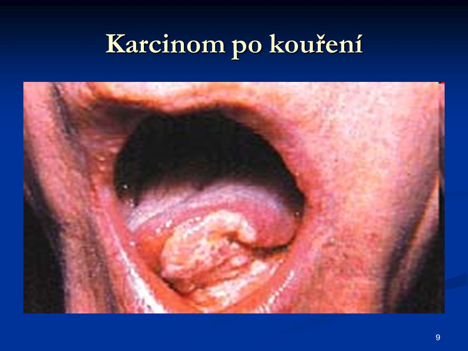 Karcinom po kouření