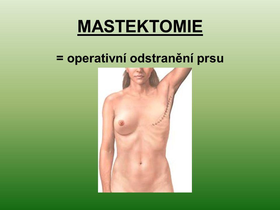 = operativní odstranění prsu