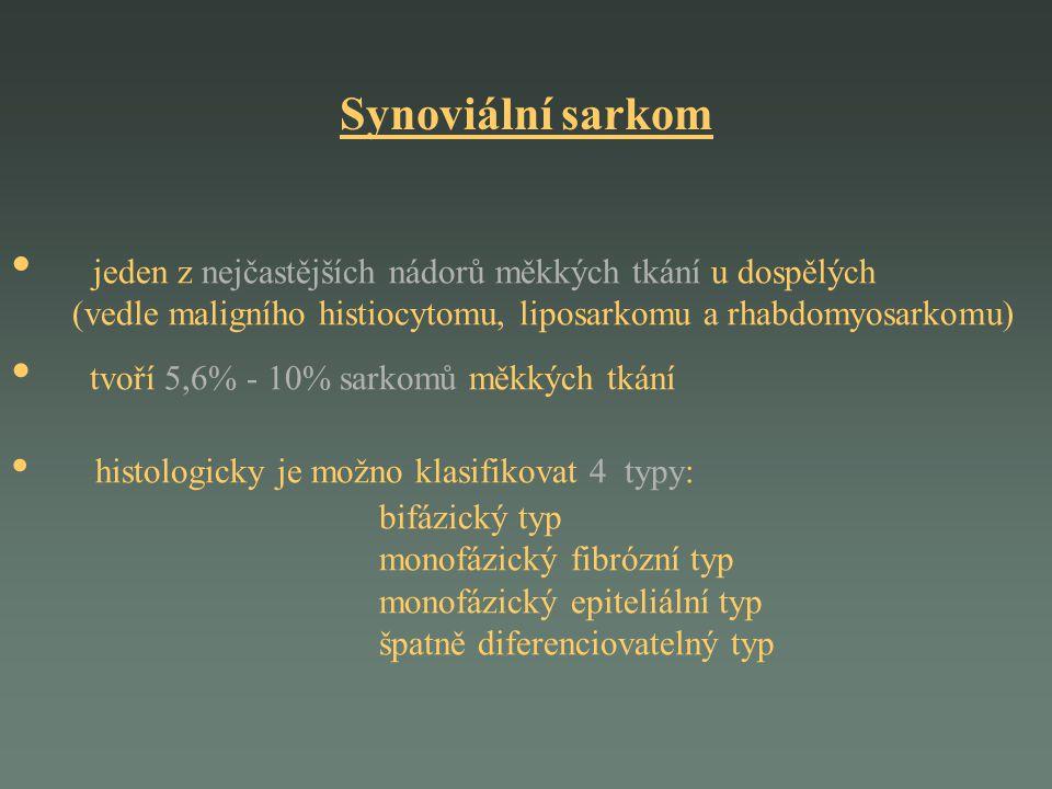 Synoviální sarkom