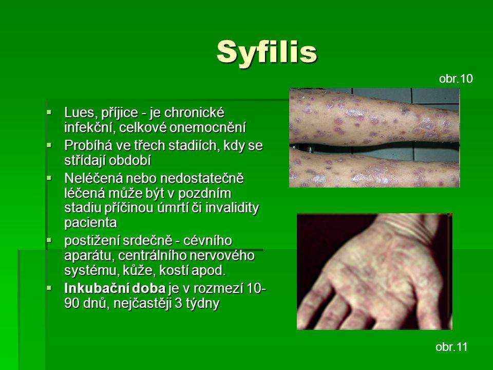 Syfilis Lues, příjice - je chronické infekční, celkové onemocnění
