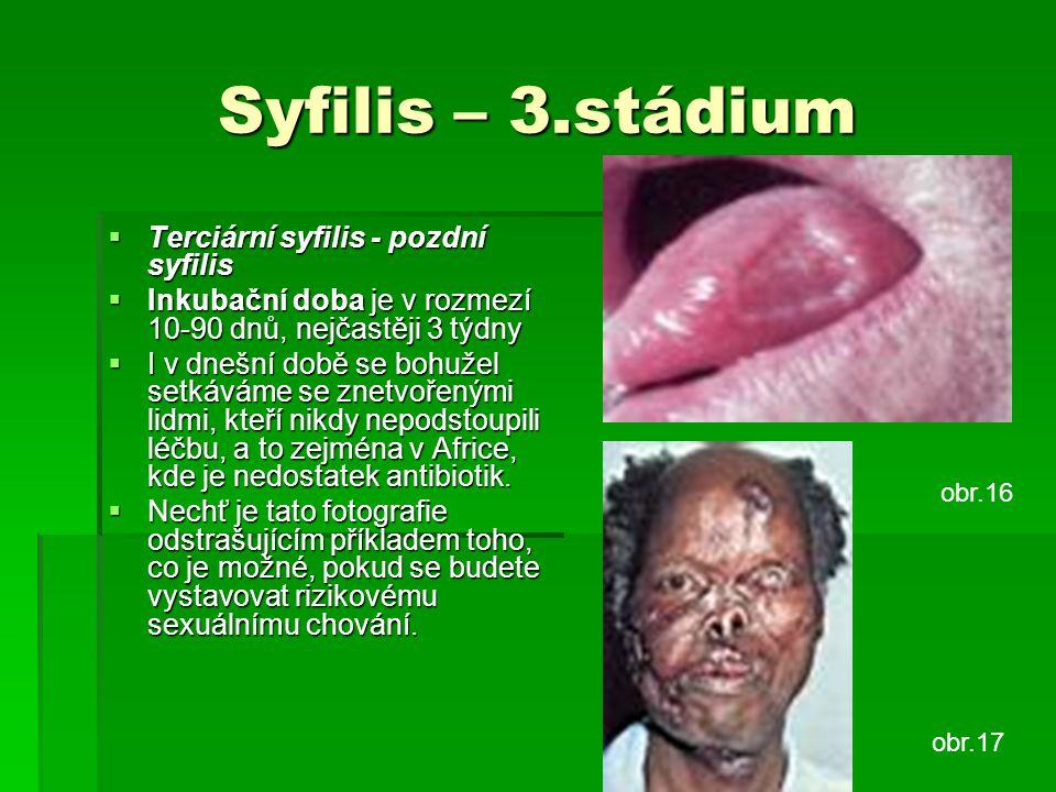 Syfilis – 3.stádium Terciární syfilis - pozdní syfilis