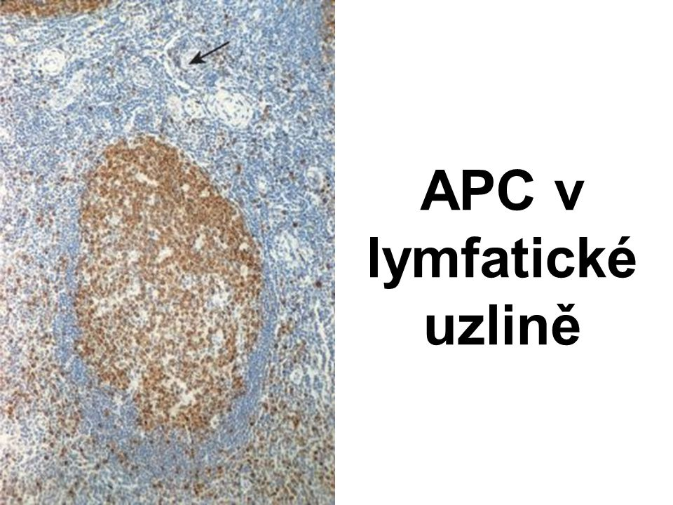 APC v lymfatické uzlině