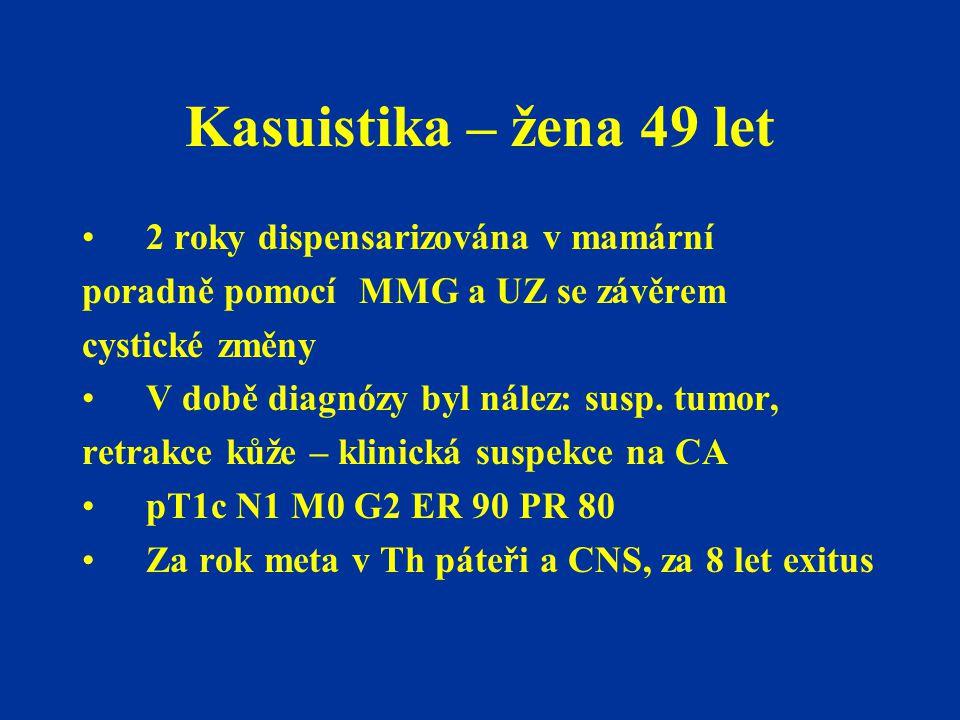 Kasuistika – žena 49 let 2 roky dispensarizována v mamární