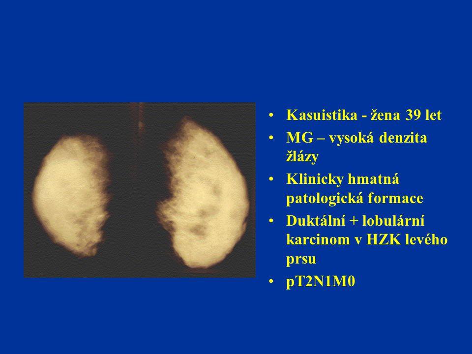Kasuistika - žena 39 let MG – vysoká denzita žlázy. Klinicky hmatná patologická formace. Duktální + lobulární karcinom v HZK levého prsu.